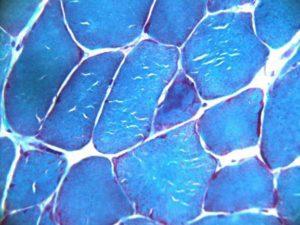 (圖三)與圖二病例相同。三色染色顯示部分肌纖維包漿內有包涵體。