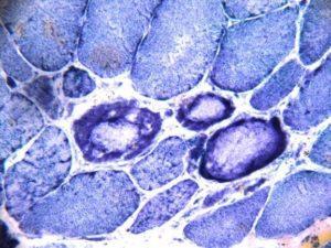 (图四)与图二病例相同。氧化肌酶染色显示部分肌纤维包浆内有包涵体并且染色变浅。