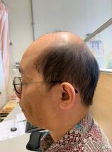 秃頭、兩側顳肌萎縮