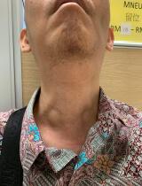 頸部肌⾁萎縮